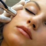 Для чего применяется микродермабразия лица