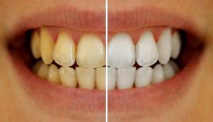 Лучшие лайфхаки для идеальной белизны Ваших зубов
