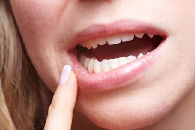Красные зубы — симптом чего?