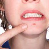 Как избавиться от прыщей, не обращаясь к дерматологу?