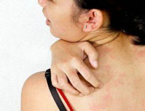 Аллергия на металл: не только косметическая проблема…