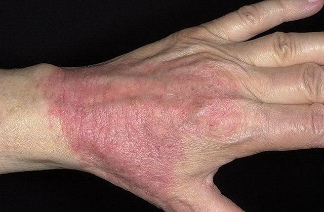 Контактный дерматит: причины, симптомы и лечение
