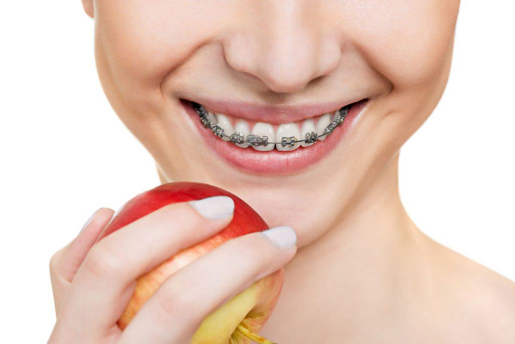 Ортодонт – выравнивание зубов в лучшем виде