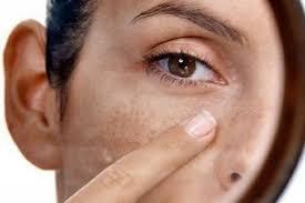 «Пятновыводитель» для кожи