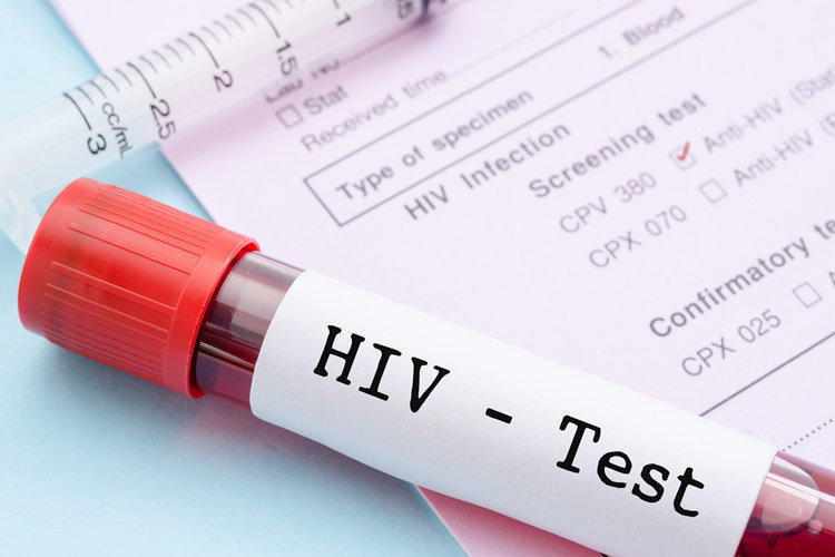 Диагностика и лечение ВИЧ и СПИДа