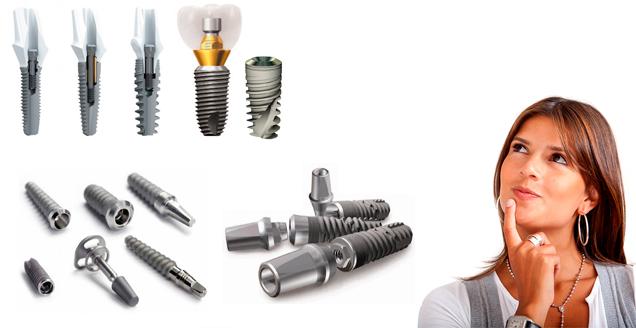 Выбор зубных имплантатов