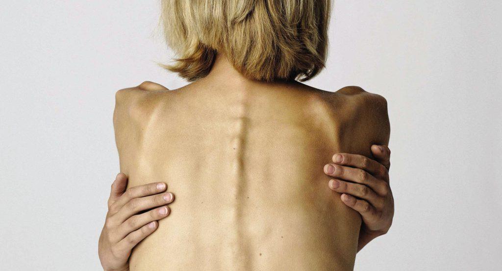 Как лечить анорексию