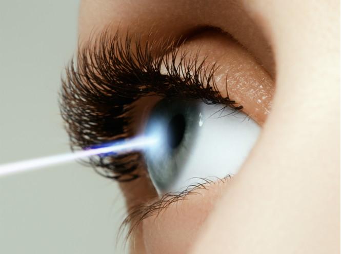 10 мифов и фактов о лазерной коррекции зрения