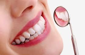 Отбеливание зубов: мифы и реальность