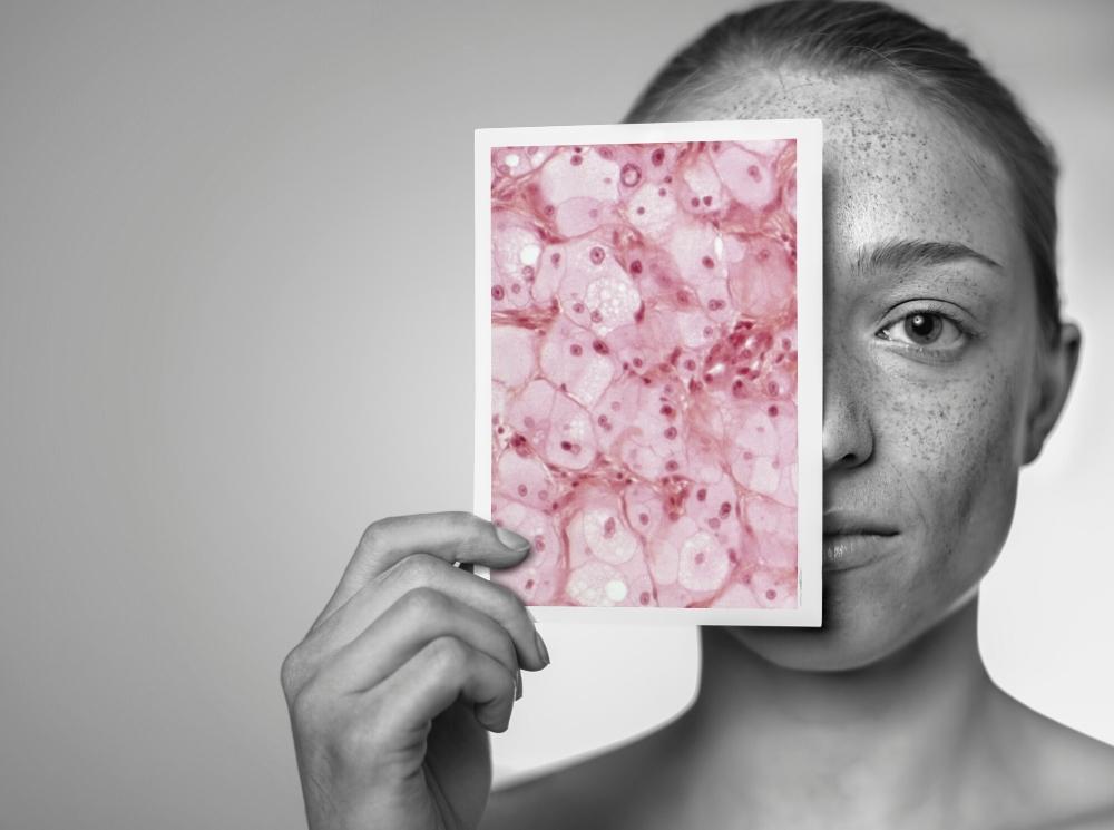 Живой щит: как заставить бактерии работать на вашу кожу