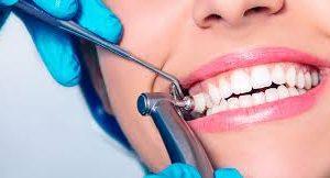 От улыбки: все о гигиене зубов
