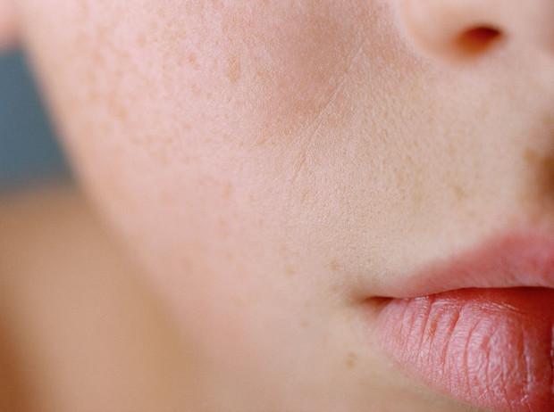 Советы звезд: 5 способов улучшить состояние кожи