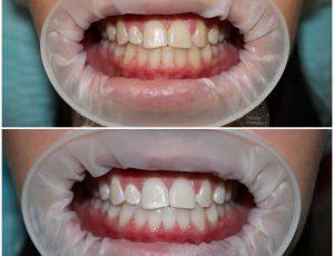 Как выполняется отбеливание зубов?